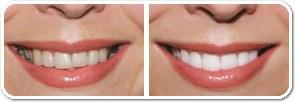 trattamento denti da sbiancare