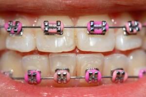 ortodonzia adulta ed infantile